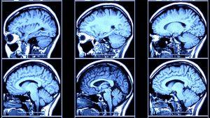 Brain injury attorney Gig Harbor, Washington